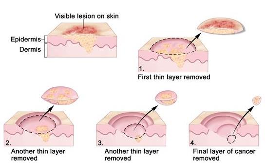 Mohs Surgery Visual Steps