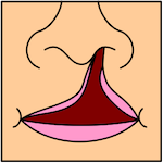 Unilateral Complete Cleft Lip