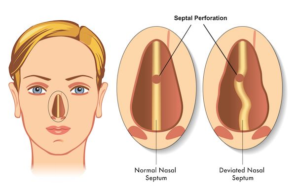 Nasal Septal Perforation Repair Graphic