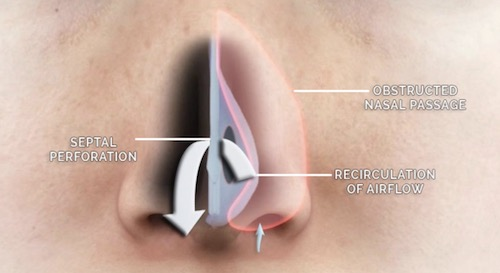 Nasal Septal Perforation Repair of Airflow