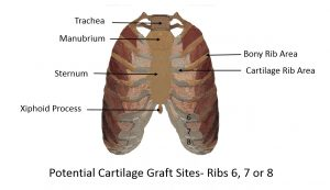Potential Rib Grafting Donor Sites