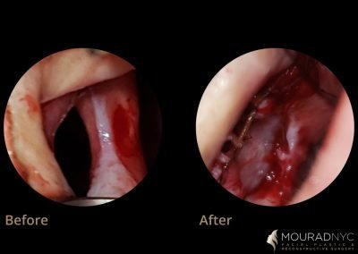 Repaired Septal Perforation Before and After