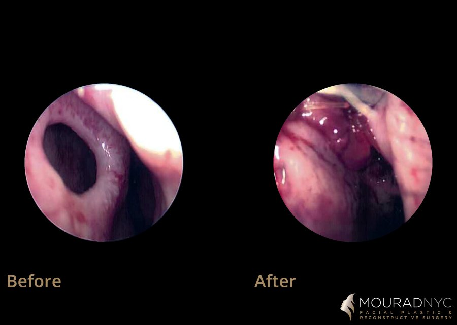 Septal Perforation Repair Before and After