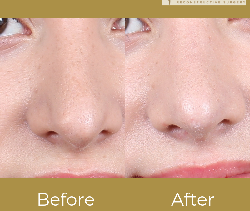 Before and After Female Revision Rhinoplasty