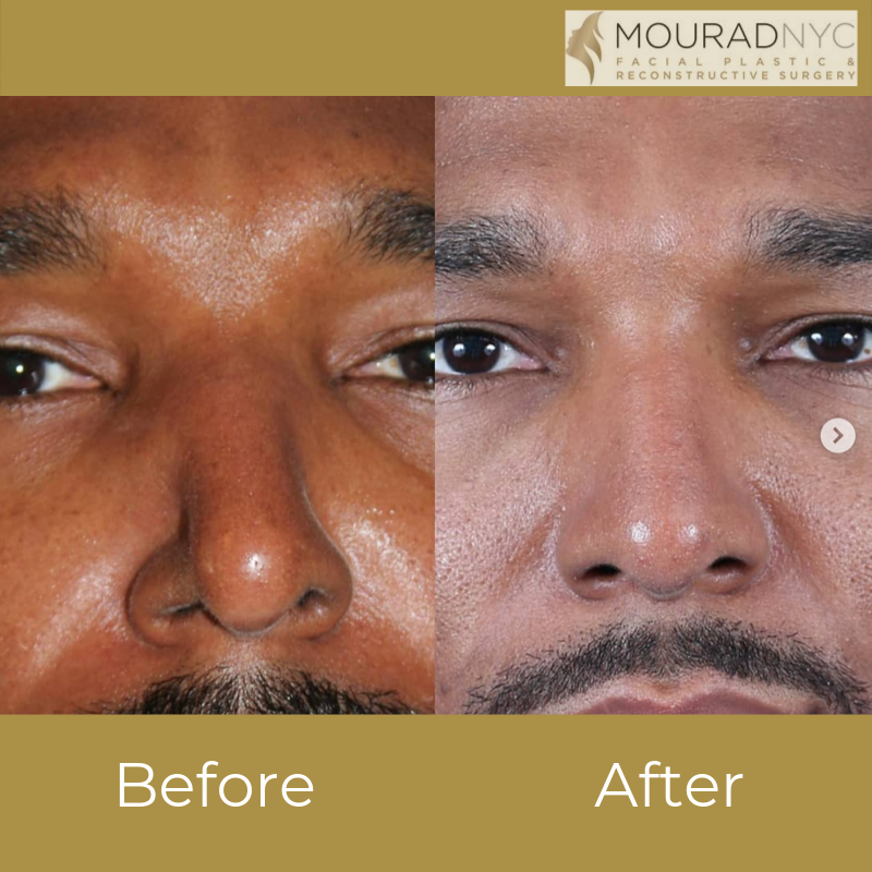 Male Ethnic Rhinoplasty Before and After Close Up