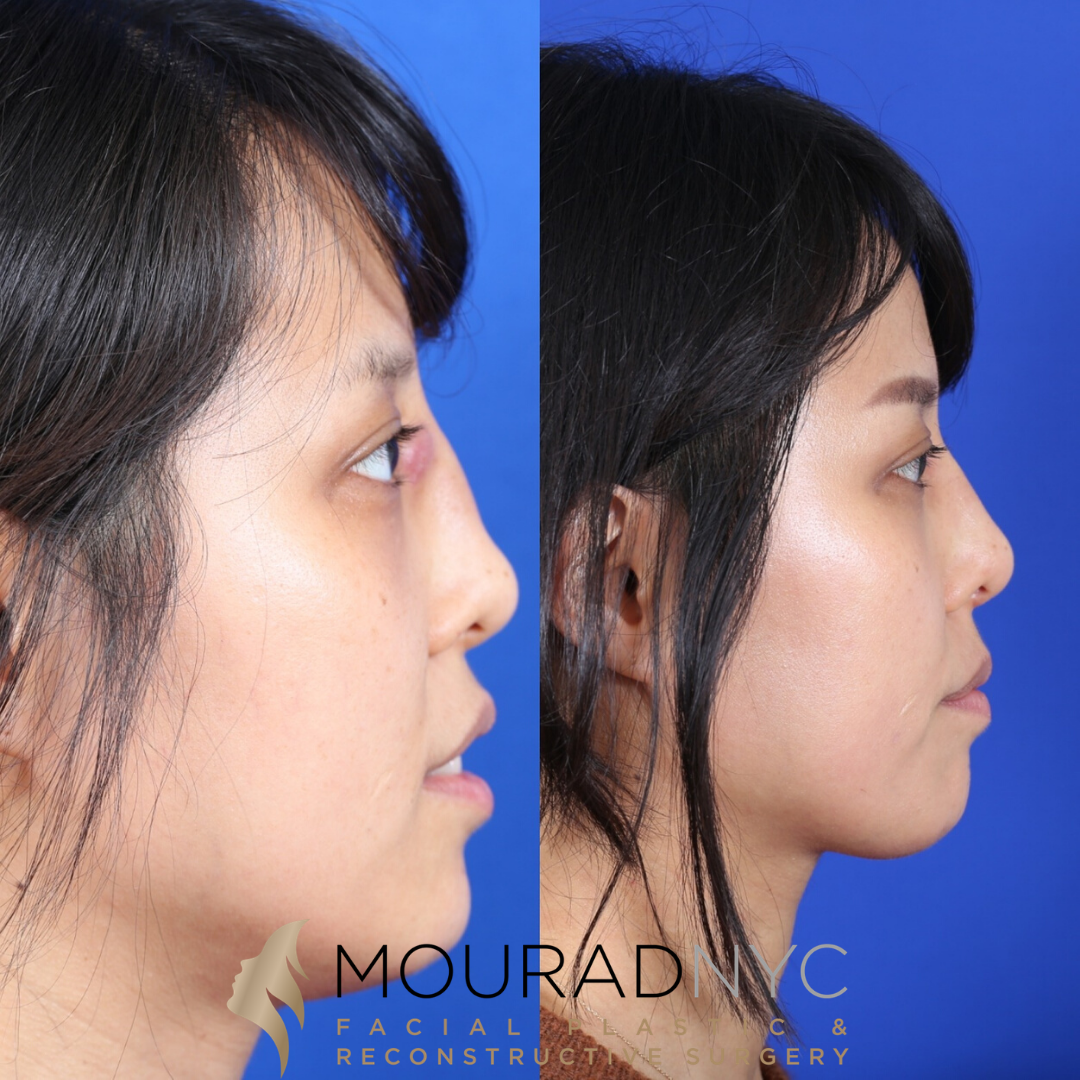 Male Ethnic Rhinoplasty Before and After Front View