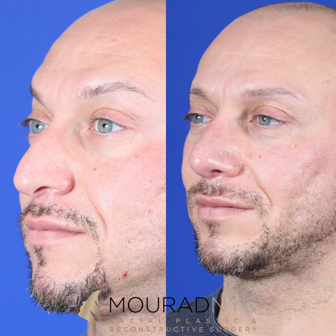 Male Ethnic Rhinoplasty Before and After Nasal View