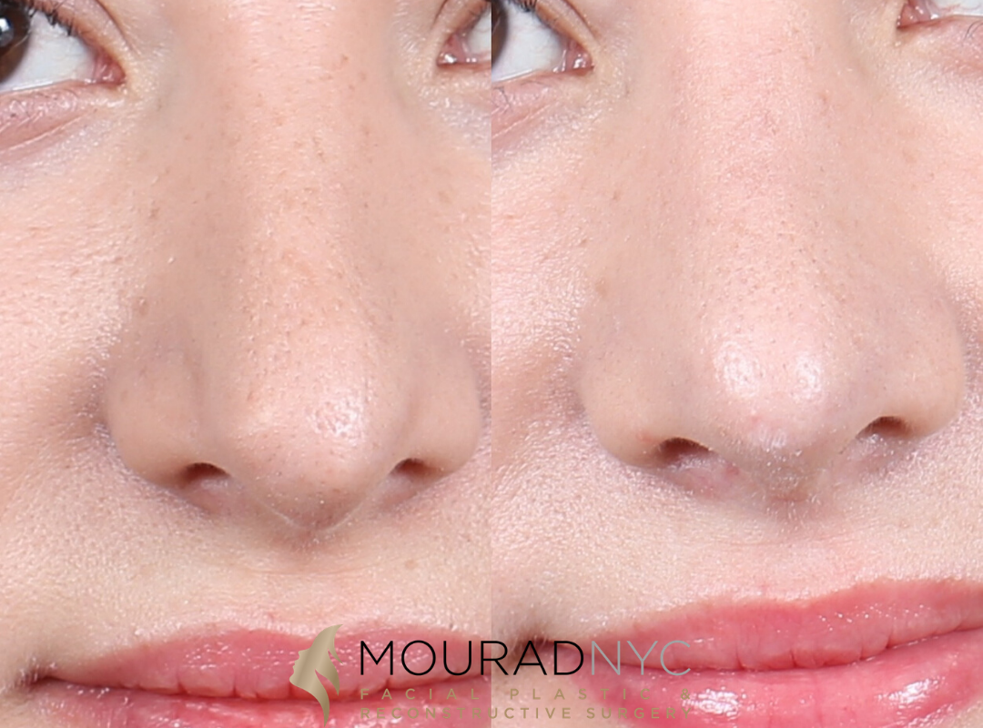 Female Rhinoplasty Before and After Front View