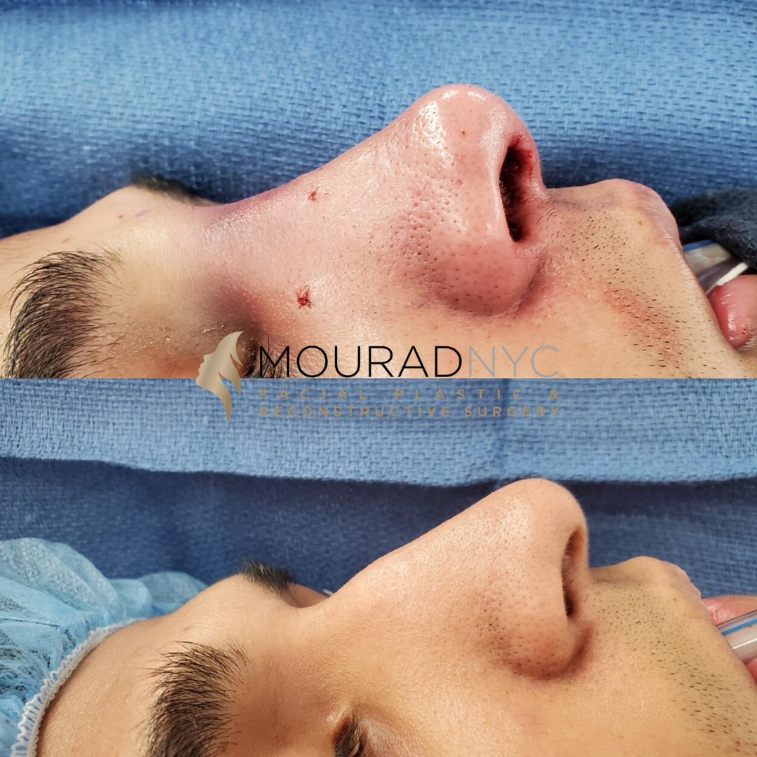 Repaired-Septal-Perforation-Before-After-Photo