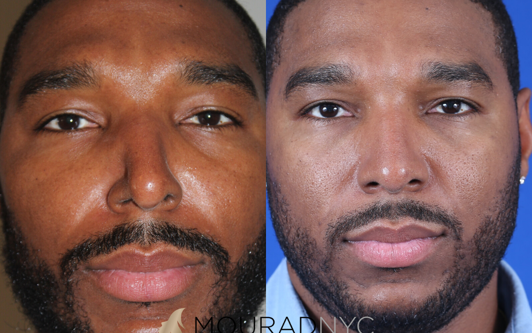 Male Ethnic Rhinoplasty Before and After