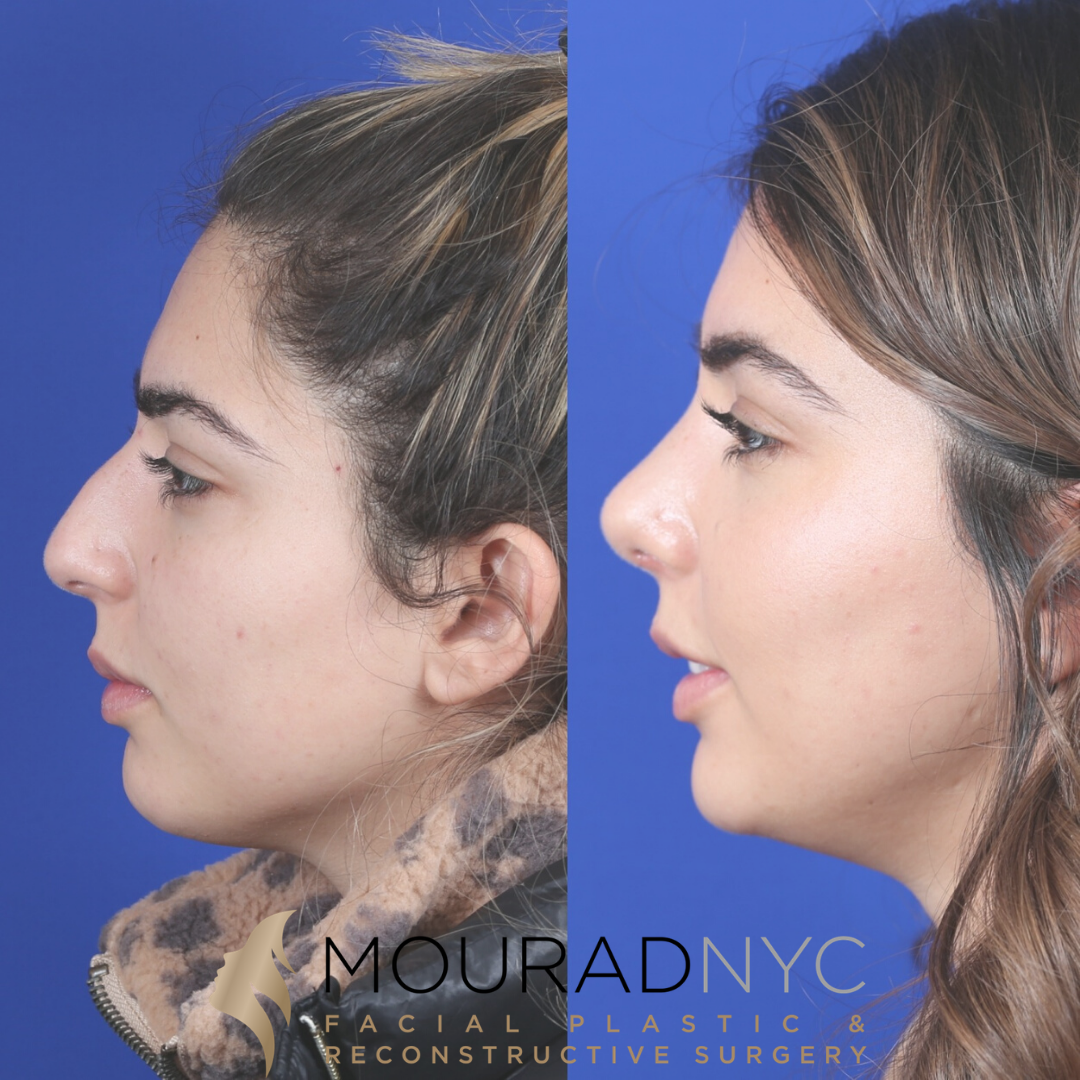 Female Ethnic Rhinoplasty 1 Month Before And After Head And Neck Surgeon