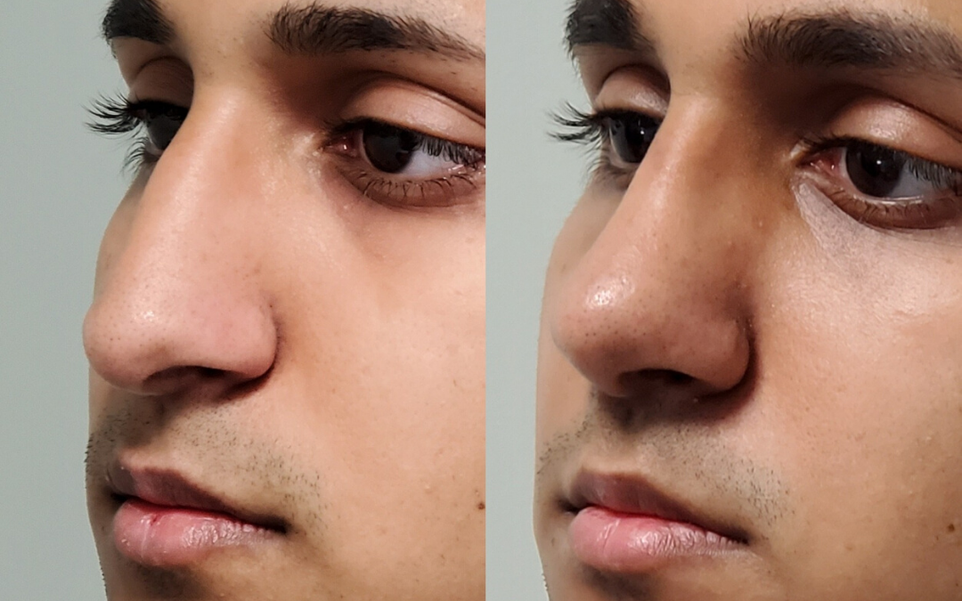 Male Closed Rhinoplasty Before and After