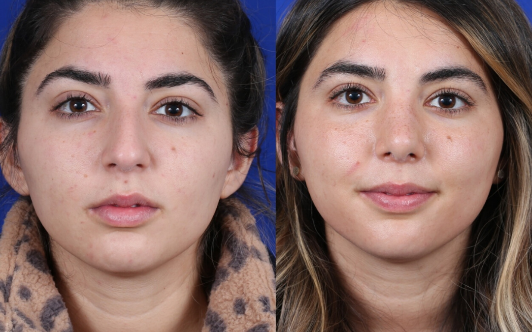 Female Rhinoplasty 4 Month Before And After Head And Neck Surgeon