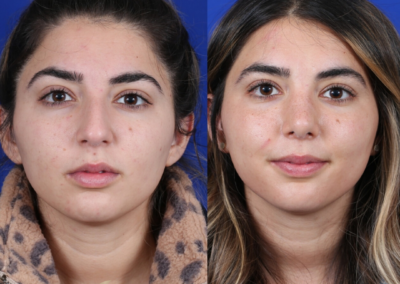 Female Rhinoplasty 4 Month Before and After