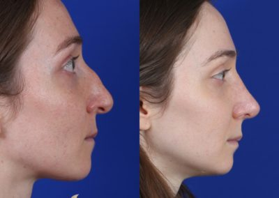 Female Rhinoplasty Before and After