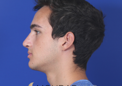 Rhinoplasty Before and After Male